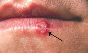 Герпес: Как избежать инфицирования его вирусом