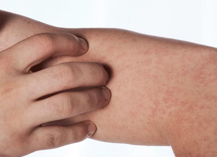 Кожный васкулит. Симптомы, диагностика, лечение