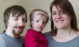 Синдром Тричера-Коллинза: что такое челюстно-лицевой дизостоз