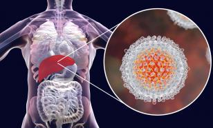 Гепатит С в 80 процентах случаев протекает скрытно