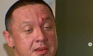 Емельяненко разбил Кокляеву лицо до крови