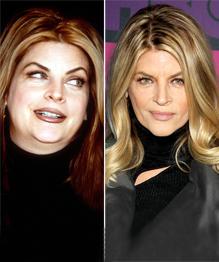 Прожорливые знаменитости, которые смогли похудеть