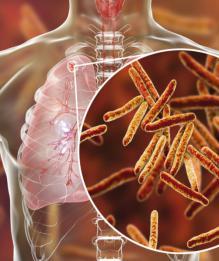 Туберкулёз. Последние новости по теме