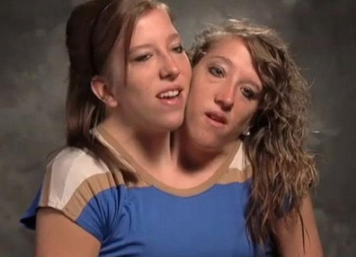 Сиамские близнецы Сёстры Эбигейл и Бриттани Хенсел