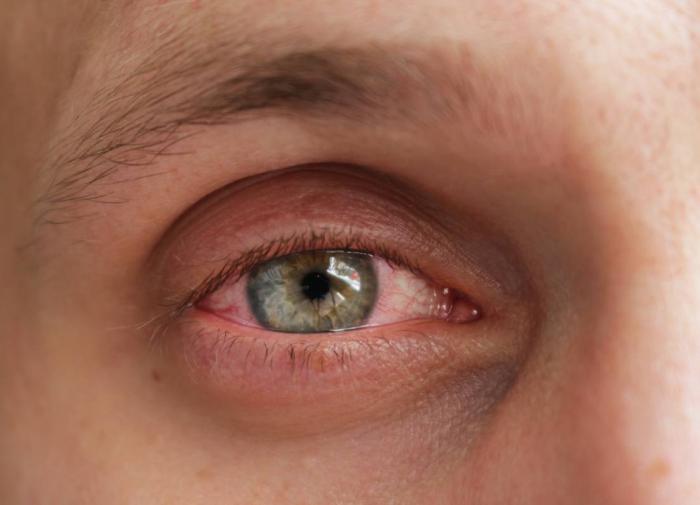 инфекция глаз